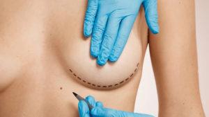 Alerta salud: ¿por qué se relaciona un tipo de cáncer con las prótesis mamarias rugosas o lisas?